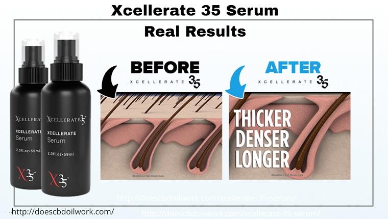 Xcellerate 35 serum