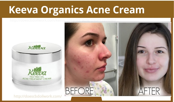 Keeva Organics Acne Cream